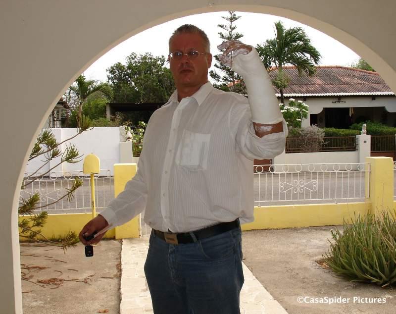 18.06.2007: CasaSpider in het gips wegens gebroken pols. Klik voor groter.