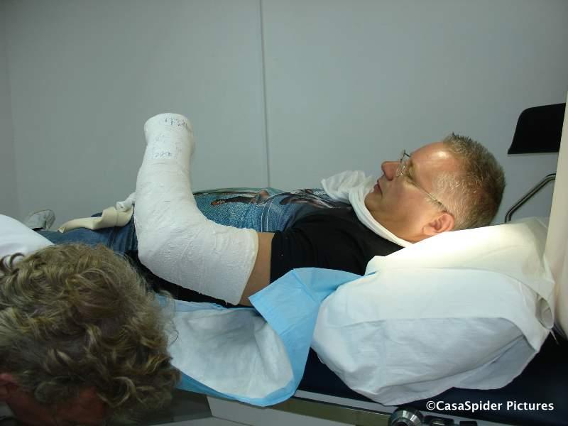 20.06.2007: Gehele linkerarm CasaSpider nu in het gips; krulletjes zijn van dokter Maarten Taams. Klik voor groter.