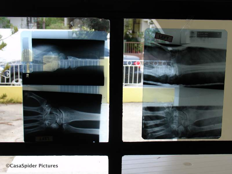06.07.2007: Röntgenfoto's van CasaSpiders polsje met bijzondere achtergrond. Klik voor groter.