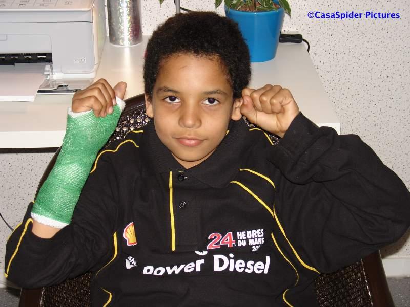 27.03.2008: Luchiano (10) krijgt groen gips voor zijn gebroken duim in het Amphia ziekenhuis te Oosterhout. Klik voor groter.