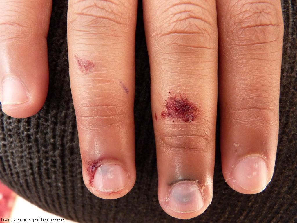 04.04.2011: Een assertieve vrouwelijke klasgenoot slaat het raam dicht met de vingers van Luchiano (013) ertussen. Klik voor groter.